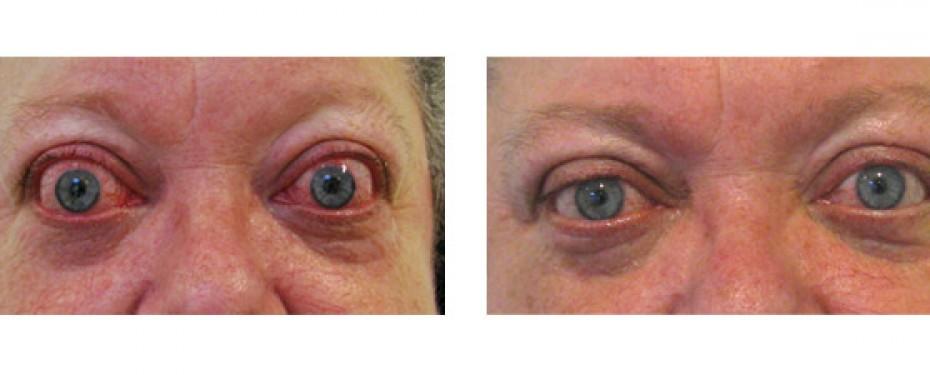 Ojos saltones - Blefaroplastia | Dr. José Nieto