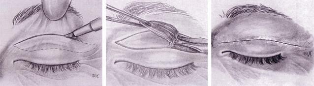 blefaroplastia superior: operación de párpado superior.