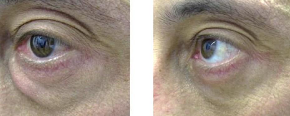 Blefaroplastia inferior 4 - Blefaroplastia | Dr. José Nieto