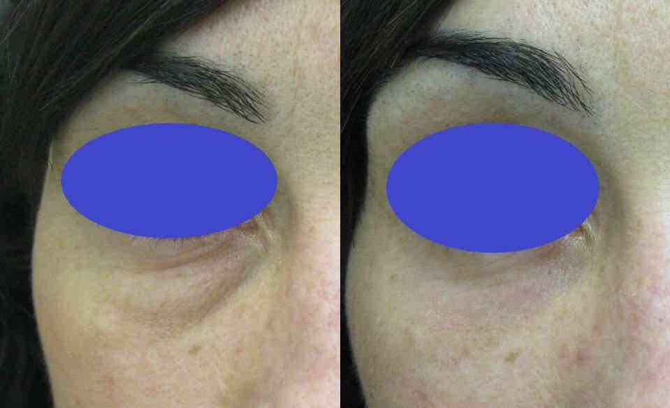 Antes y después de blefaroplastia inferior transconjuntival