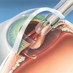 Presbicia - implantación de lente intraocular por microincisión | blefaroplastia.es - Dr. Jose Nieto