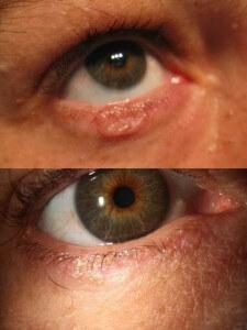 Antes y después de tratamiento de carcinoma basocelular con crioterapia sin cirugía.