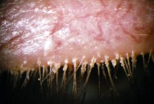 Aspecto típico de la blefaritis con descamación a nivel de la raíz de las pestañas