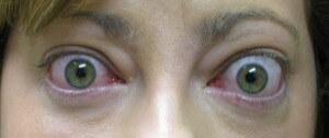 retracción palpebral y exoftalmos en paciente con orbitopatía tiroidea