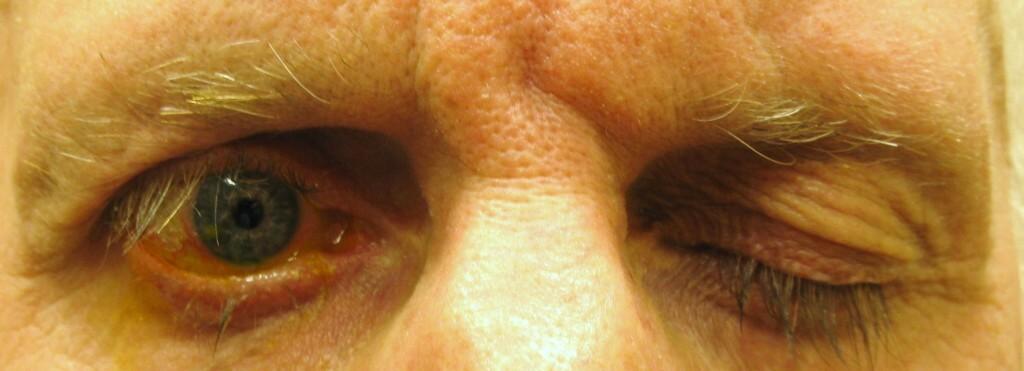 foto paralisis facial. leyenda- Incapacidad para cerrar el ojo  en un paciente con par†lisis facial derecha