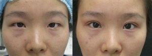 Blefaroplastia asiática antes y después