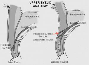 Blefaroplastia asiática (Double eyelid anatomy)