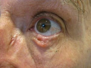 lower eyelid nodular basal cell carcinoma