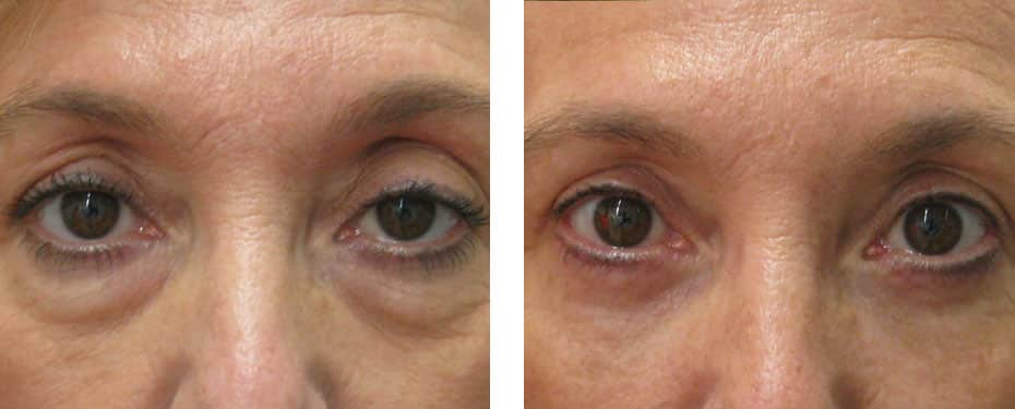 Upper and lower blepharoplasty with tightened skin