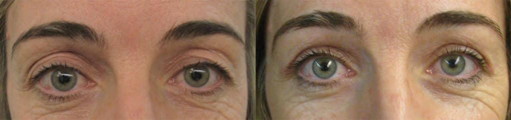 Antes y después de operación de blefaroplastia superior
