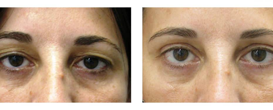 Blepharoplasty with asymmetric correction