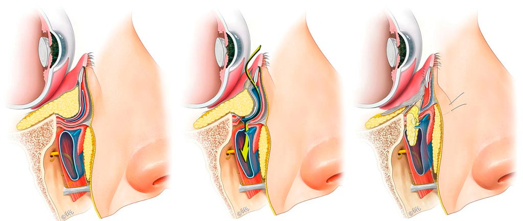 Blefaroplastia inferior por via transconjuntival y con redistribución