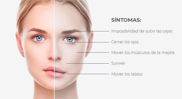 causas de una parálisis facial