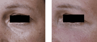 Antes y después del tratamiento de las ojeras con ácido hilurónico.