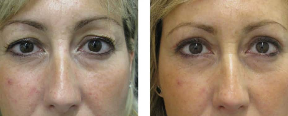 Blepharoplasty with excess eyelid skin