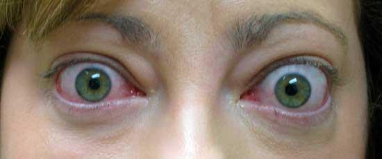 Retracción palpebral y exoftalmos en paciente con orbitopatía tiroidea.