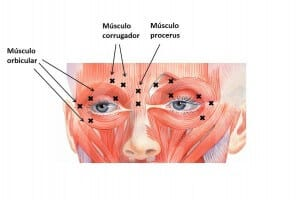 Botulinum toxin injection pattern for blepharospasm
