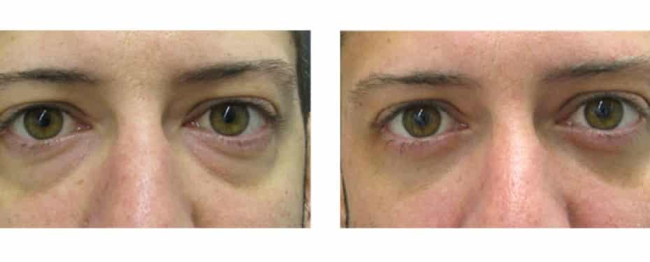 Blepharoplasty with fat pack reduction