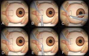 Strabismus surgery schematically