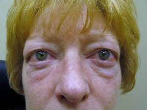 Problemas oftalmologicos